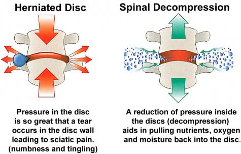 Spinal Disc Therapy Discectomy Pain